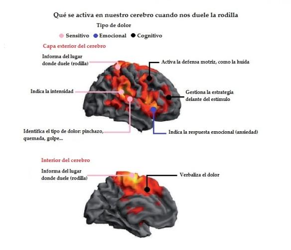 qué se activa en el cerebro cuando duele la rodilla