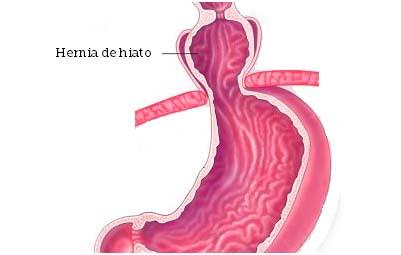 hernia hiato descodificación biológica